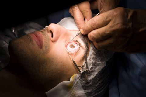 Are You a Good Candidate for Lasik Eye Surgery